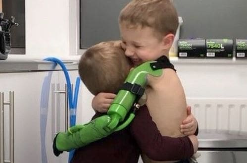 Gracias a una donación, un joven ingles ha conseguido un brazo robótico
